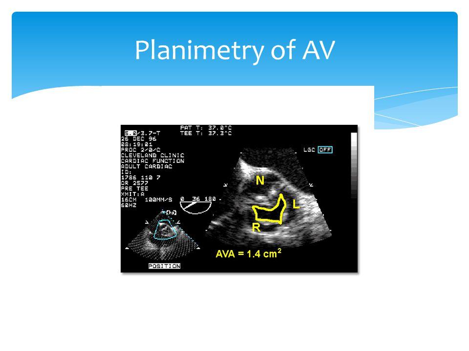Planimetry of AV