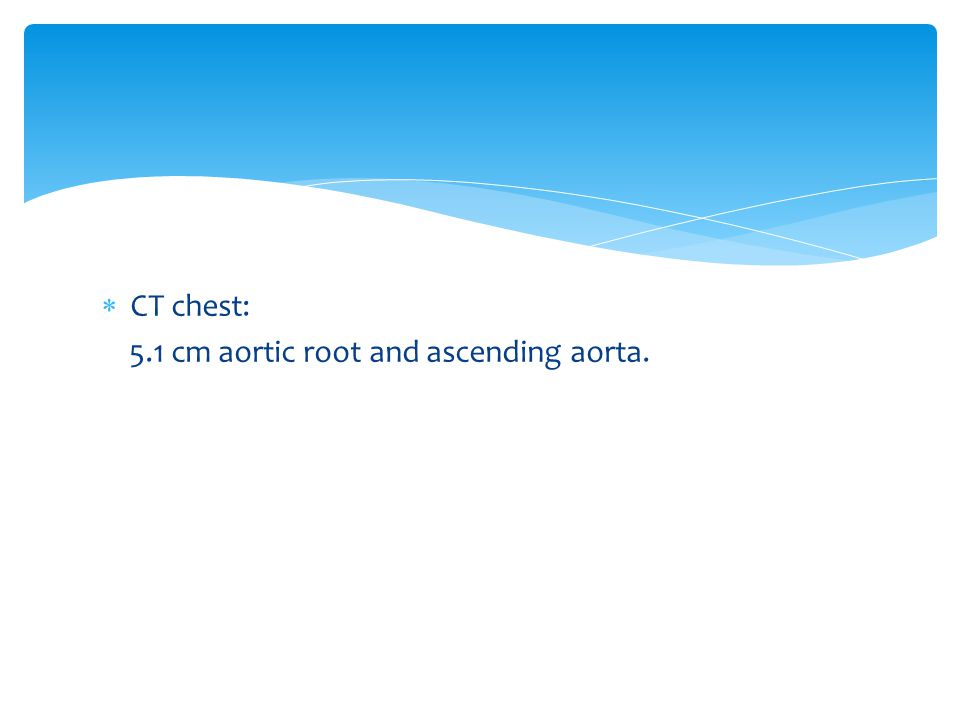  CT chest: 5.1 cm aortic root and ascending aorta.