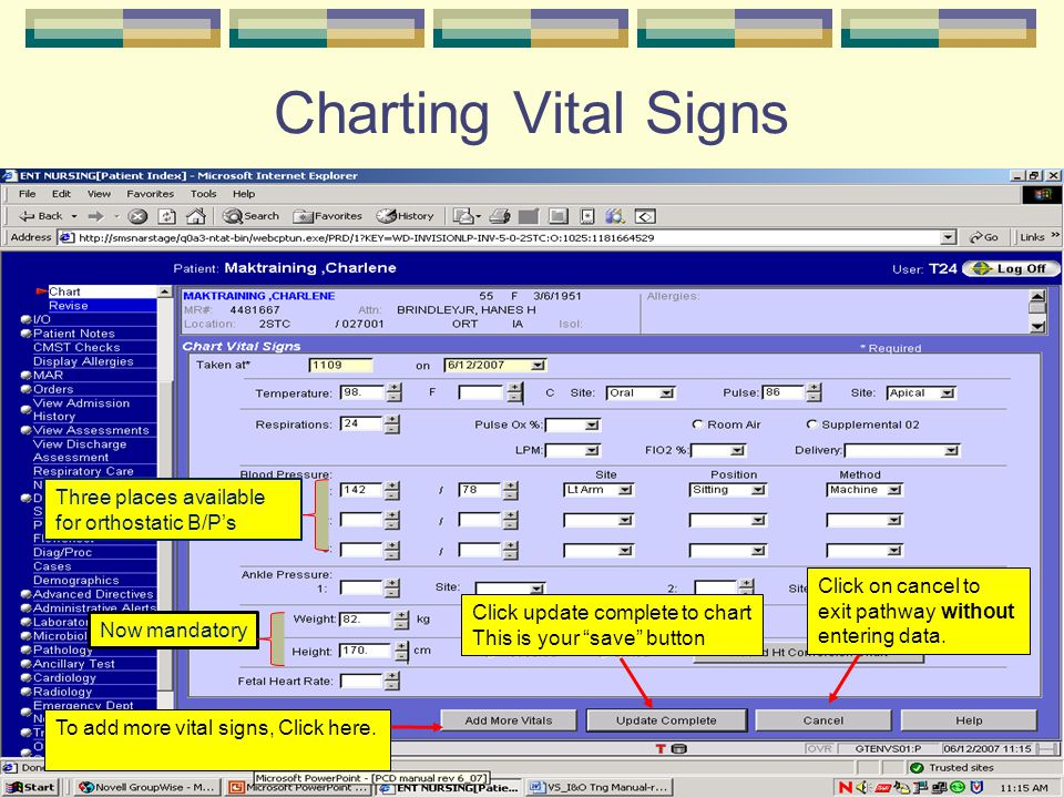 "Charting Vital Signs To add more vital signs, Click here. Click update complete to chart This is your ""save"" button Click on cancel to exit pathway wi"