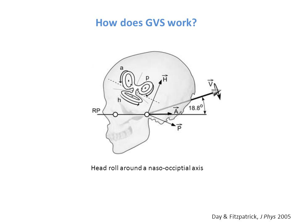 How does GVS work? Day & Fitzpatrick, J Phys 2005 Head roll around a naso-occiptial axis
