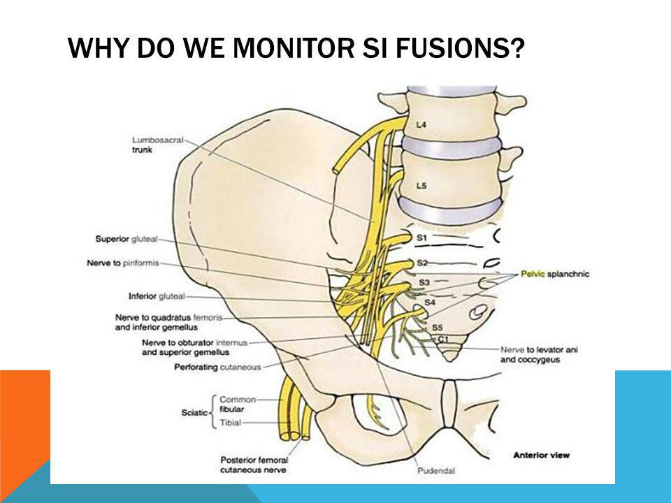 WHY DO WE MONITOR SI FUSIONS?