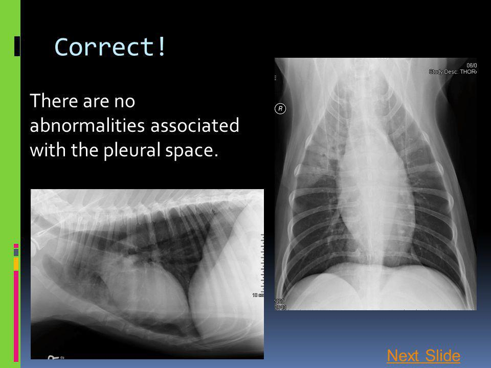 Correct! There are no abnormalities associated with the pleural space. Next Slide