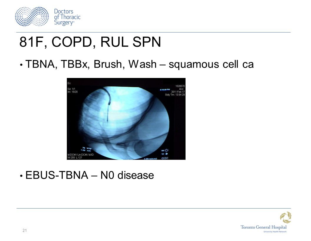 81F, COPD, RUL SPN TBNA, TBBx, Brush, Wash – squamous cell ca EBUS-TBNA – N0 disease 21