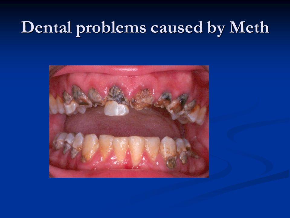 Dental problems caused by Meth