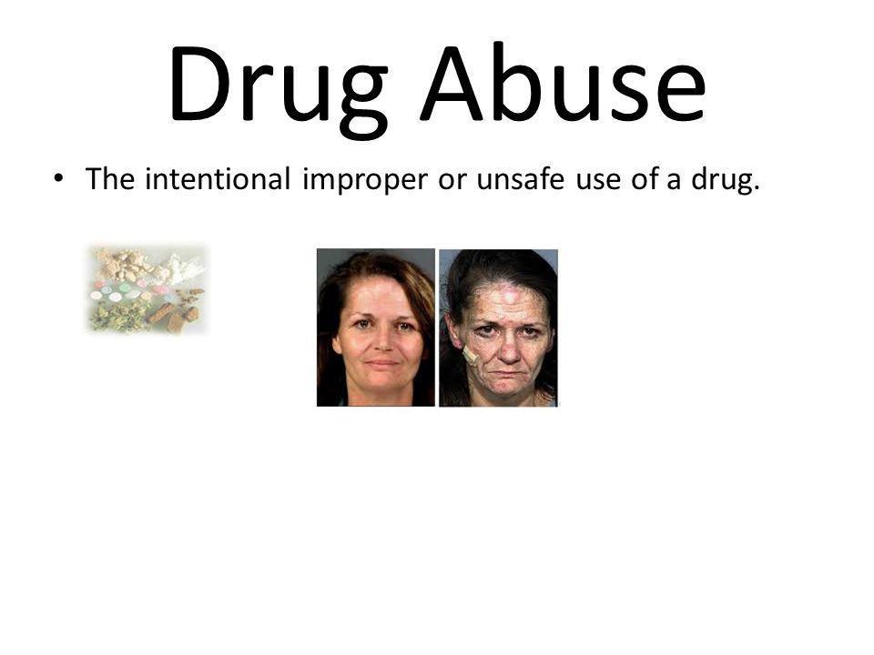 Drug Abuse The intentional improper or unsafe use of a drug.