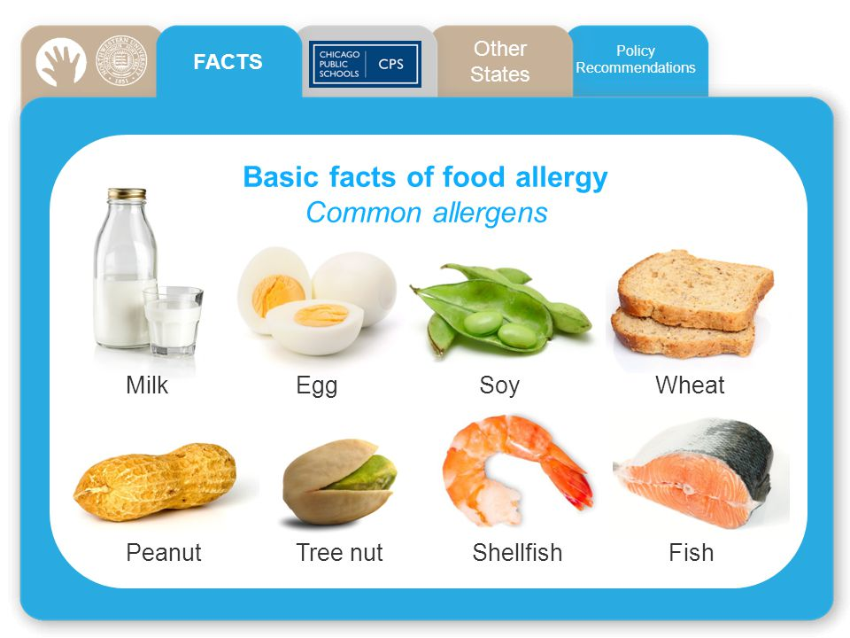 Basic facts of food allergy Common allergens PeanutTree nut Shellfish Fish MilkEgg Soy Wheat FACTS Policies: CPS Other States Policy Recommendations