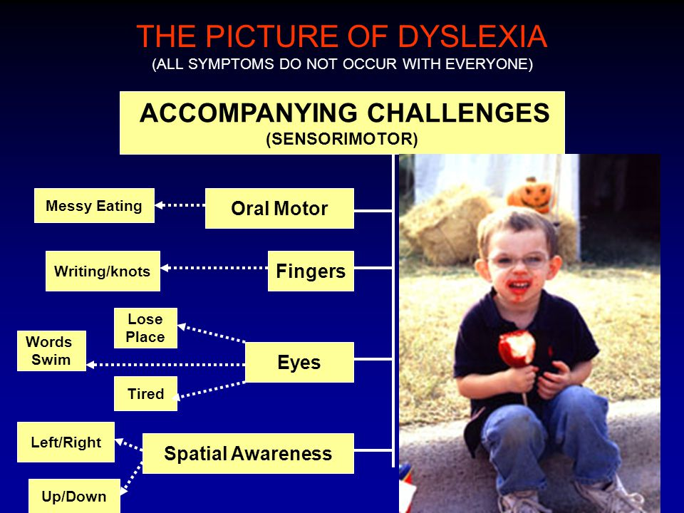 THE PICTURE OF DYSLEXIA (ALL SYMPTOMS DO NOT OCCUR WITH EVERYONE) ACCOMPANYING CHALLENGES (SENSORIMOTOR) Oral Motor Messy Eating Writing/knots Fingers Eyes Tired Words Swim Lose Place Spatial Awareness Up/Down Left/Right