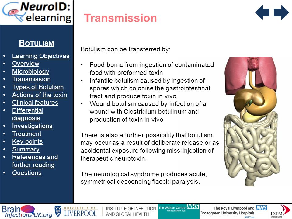 B OTULISM Learning Objectives Overview Microbiology Transmission Types of Botulism Actions of the toxin Clinical features Differential diagnosisDifferential diagnosis Investigations Treatment Key points Summary References and further readingReferences and further reading Questions Question 2 b) Wound botulism is caused by contamination of a wound with the spores of clostridium botulinum True False b) Wound botulism is caused by contamination of a wound with the spores of clostridium botulinum True False TRUE- INCORRECT Wound botulism is cause by contimination with clostridium botulinum and then production of toxin in vivo.