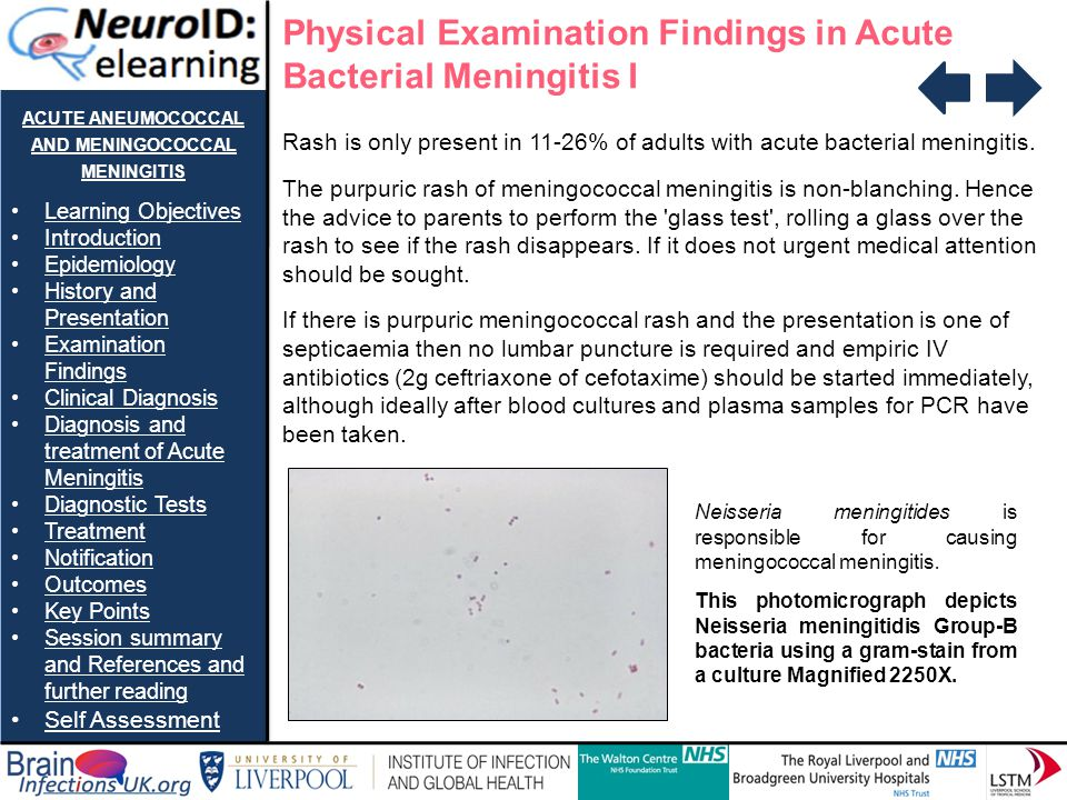ACUTE PNEUMOCOCCAL AND MENINGOCOCCAL MENINGITIS Learning Objectives Introduction Epidemiology History and PresentationHistory and Presentation Examination FindingsExamination Findings Clinical Diagnosis Diagnosis and treatment of Acute MeningitisDiagnosis and treatment of Acute Meningitis Diagnostic Tests Treatment Notification Outcomes Key Points Session summary and References and further readingSession summary and References and further reading Self Assessment Physical Examination Findings in Acute Bacterial Meningitis II Other tests: Kernig's sign Originally performed sitting now done supine.