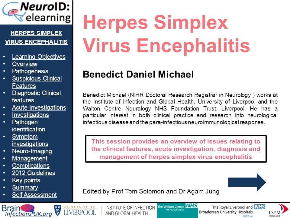 HERPES SIMPLEX VIRUS ENCEPHALITIS Learning Objectives Overview Pathogenesis Suspicious Clinical FeaturesSuspicious Clinical Features Diagnostic Clinic