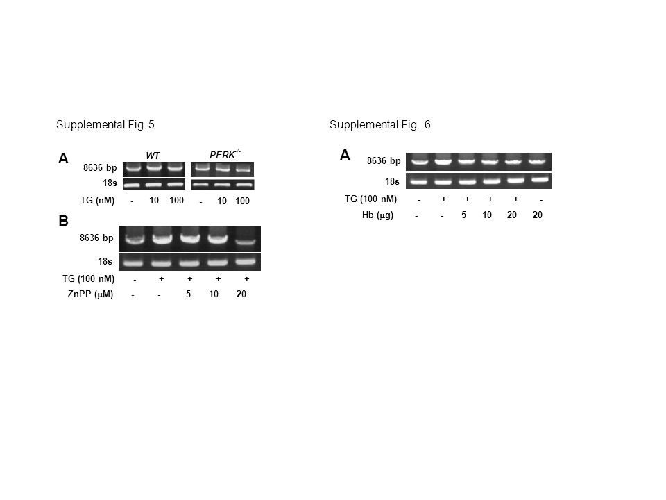 - 10 100 WT TG (nM) - 10 100 8636 bp 18s PERK -/- B 8636 bp 18s TG (100 nM) - + + + + ZnPP (  M) - - 5 10 20 A Supplemental Fig.