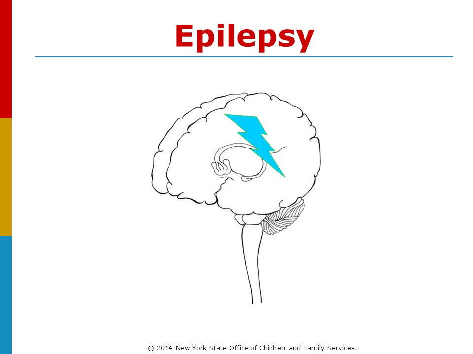 Epilepsy © 2014 New York State Office of Children and Family Services.