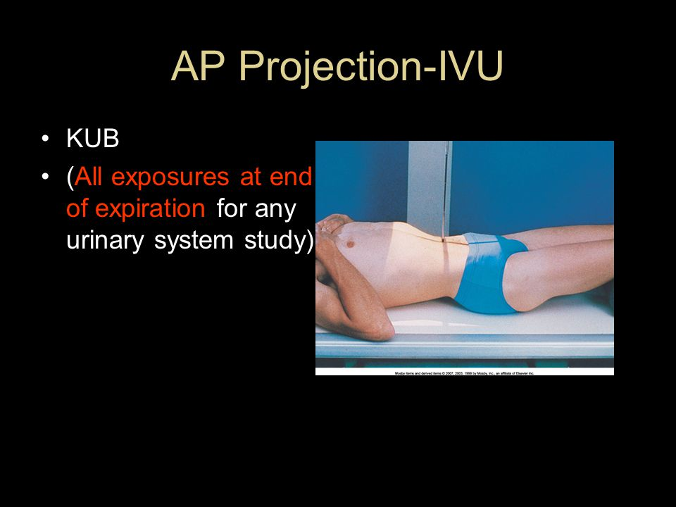 AP Projection-IVU KUB (All exposures at end of expiration for any urinary system study)