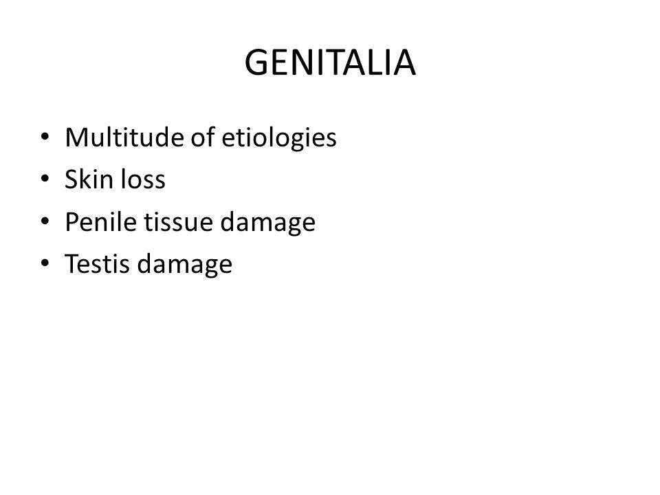 GENITALIA Multitude of etiologies Skin loss Penile tissue damage Testis damage