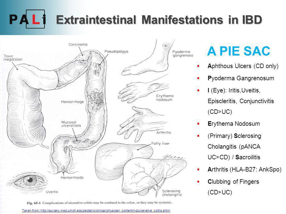  Investigations: FBC  Low Hb due to blood loss, Raised WCC & Platelet count U+E's  hypokalaemia due to mucus loss Raised CRP & ESR Low Albumin espec.