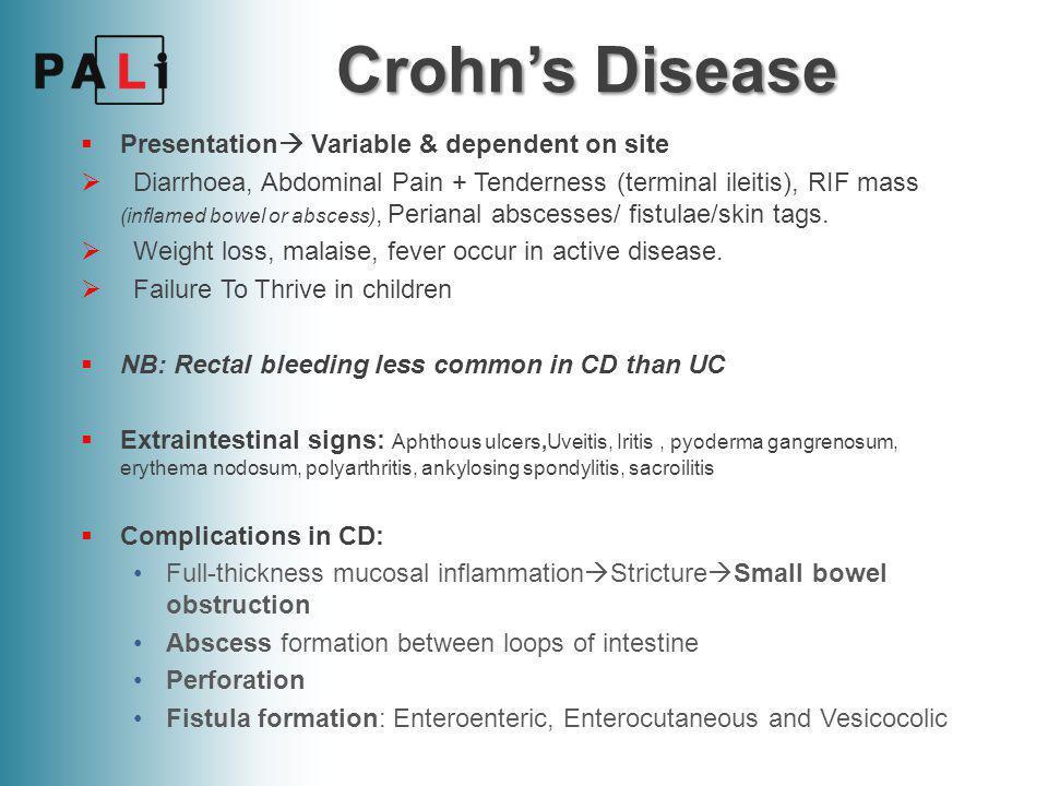 Crohn's Disease  Investigations: FBC  Low Hb (Vit B12 def., blood loss), High WCC Raised CRP & ESR Low Albumin due to malabsorption Stool Microscopy, Culture & Sensitivity Barium Enema shows 'Kantors String sign' of the terminal ileum.
