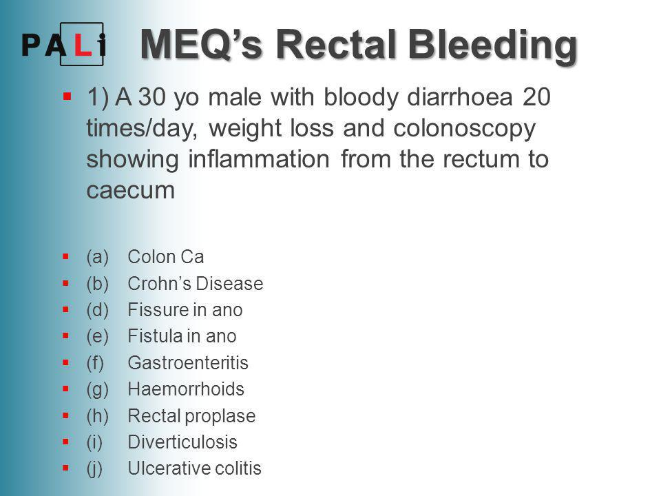 MEQ's Rectal Bleeding  1) A 30 yo male with bloody diarrhoea 20 times/day, weight loss and colonoscopy showing inflammation from the rectum to caecum  (a)Colon Ca  (b)Crohn's Disease  (d)Fissure in ano  (e)Fistula in ano  (f)Gastroenteritis  (g)Haemorrhoids  (h)Rectal proplase  (i)Diverticulosis  (j)Ulcerative colitis