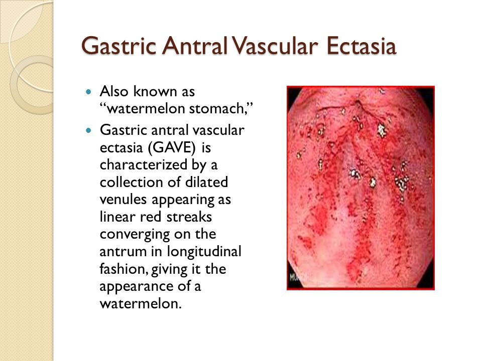 "Gastric Antral Vascular Ectasia Also known as ""watermelon stomach,"" Gastric antral vascular ectasia (GAVE) is characterized by a collection of dilated"