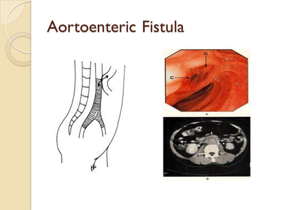 Aortoenteric Fistula