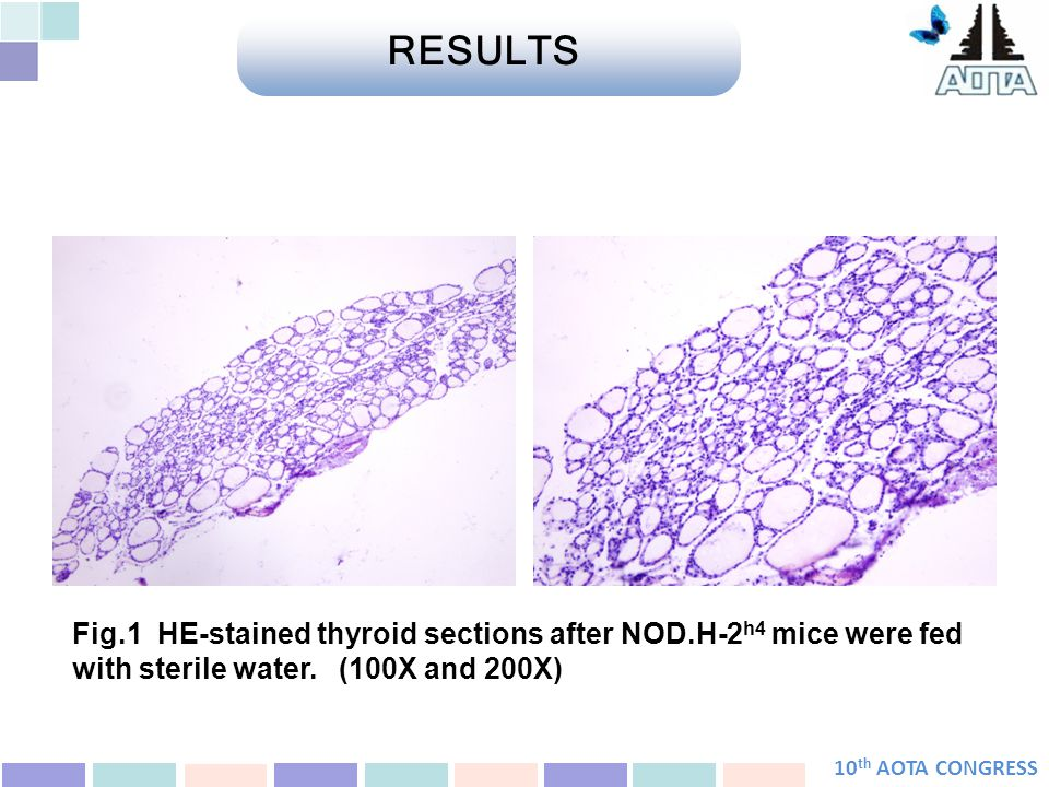 10 th AOTA CONGRESS Fig.1 HE-stained thyroid sections after NOD.H-2 h4 mice were fed with sterile water.
