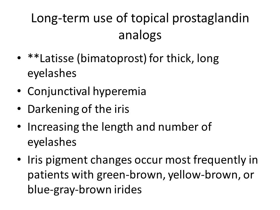 Long-term use of topical prostaglandin analogs **Latisse (bimatoprost) for thick, long eyelashes Conjunctival hyperemia Darkening of the iris Increasi