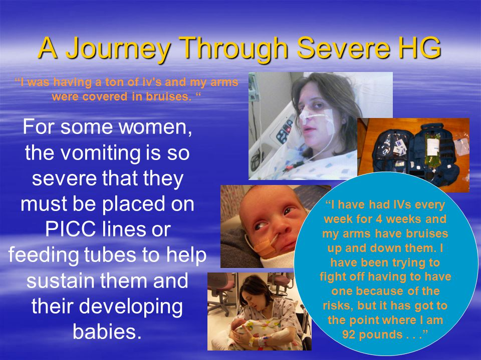 A Journey Through Severe HG For some women, the vomiting is so severe that they must be placed on PICC lines or feeding tubes to help sustain them and their developing babies.