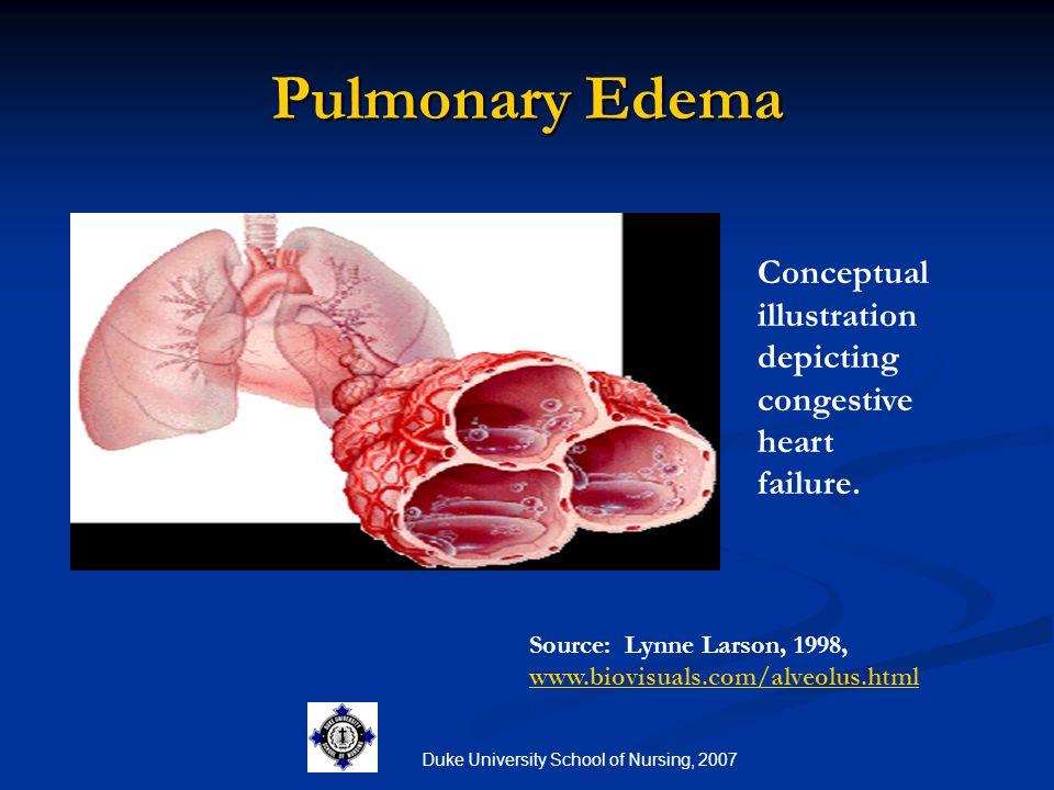 Duke University School of Nursing, 2007 Pulmonary Edema Source: Lynne Larson, 1998, www.biovisuals.com/alveolus.html www.biovisuals.com/alveolus.html