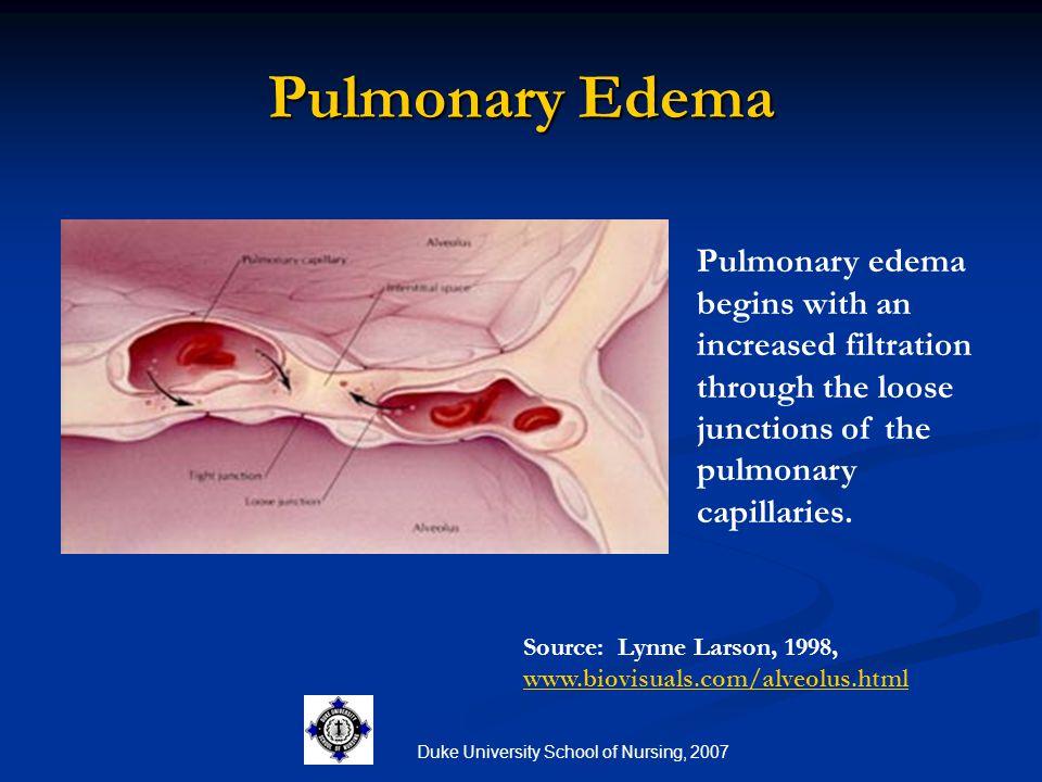 Duke University School of Nursing, 2007 Pulmonary Edema Pulmonary edema begins with an increased filtration through the loose junctions of the pulmona