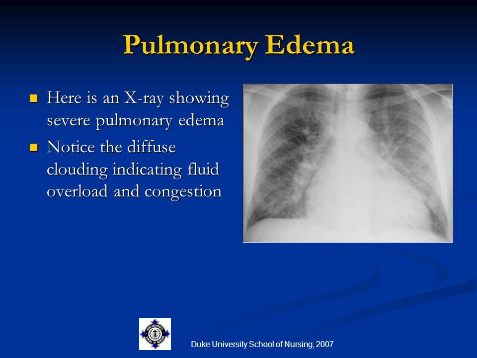 Duke University School of Nursing, 2007 Pulmonary Edema Here is an X-ray showing severe pulmonary edema Here is an X-ray showing severe pulmonary edem