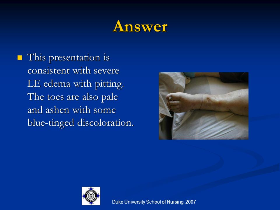 Duke University School of Nursing, 2007 Answer This presentation is consistent with severe LE edema with pitting. The toes are also pale and ashen wit