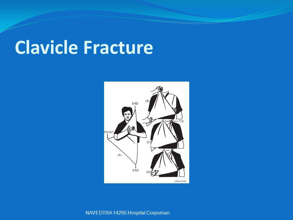 Clavicle Fracture NAVEDTRA 14295 Hospital Corpsman