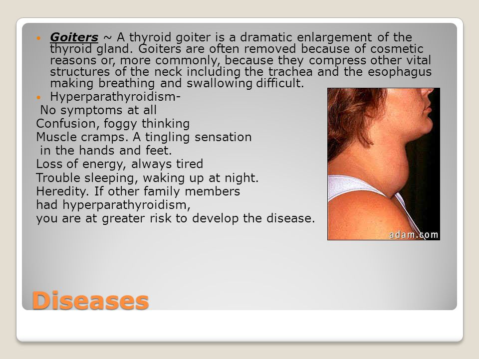 Diseases Goiters ~ A thyroid goiter is a dramatic enlargement of the thyroid gland. Goiters are often removed because of cosmetic reasons or, more com