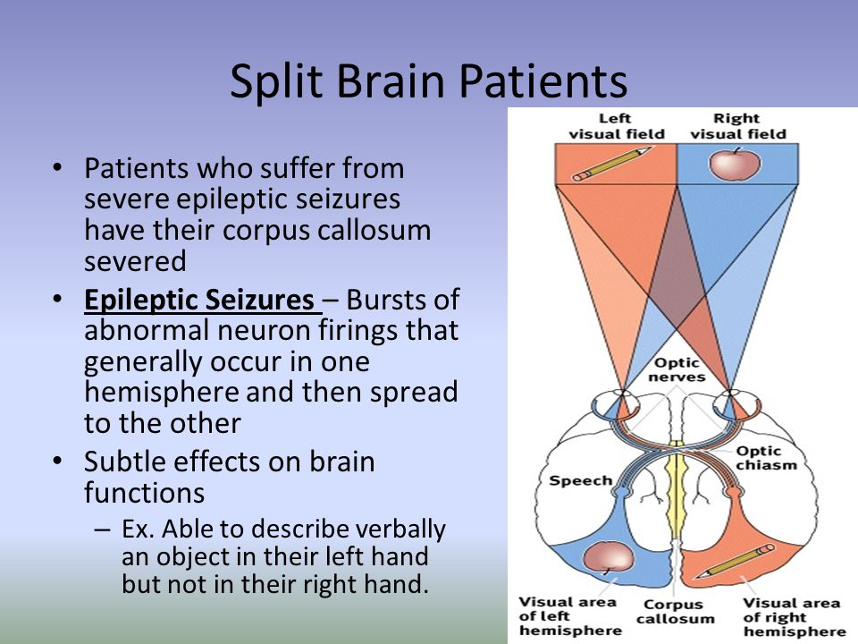 Split Brain Patients Patients who suffer from severe epileptic seizures have their corpus callosum severed Epileptic Seizures – Bursts of abnormal neu