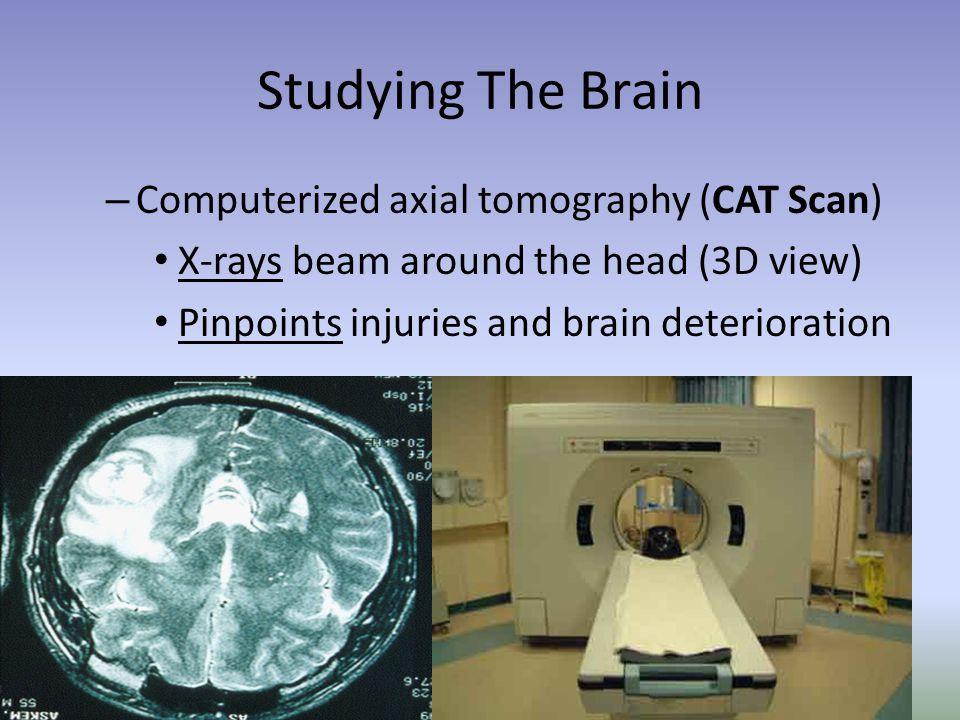Studying The Brain – Computerized axial tomography (CAT Scan) X-rays beam around the head (3D view) Pinpoints injuries and brain deterioration