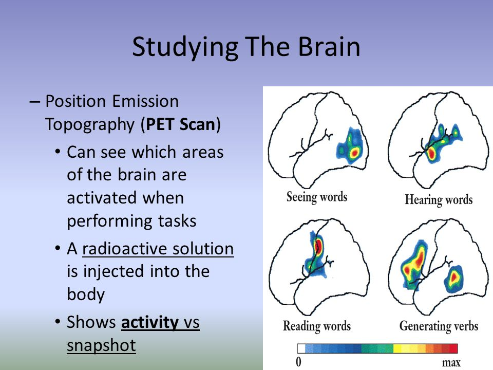 Studying The Brain – Position Emission Topography (PET Scan) Can see which areas of the brain are activated when performing tasks A radioactive soluti