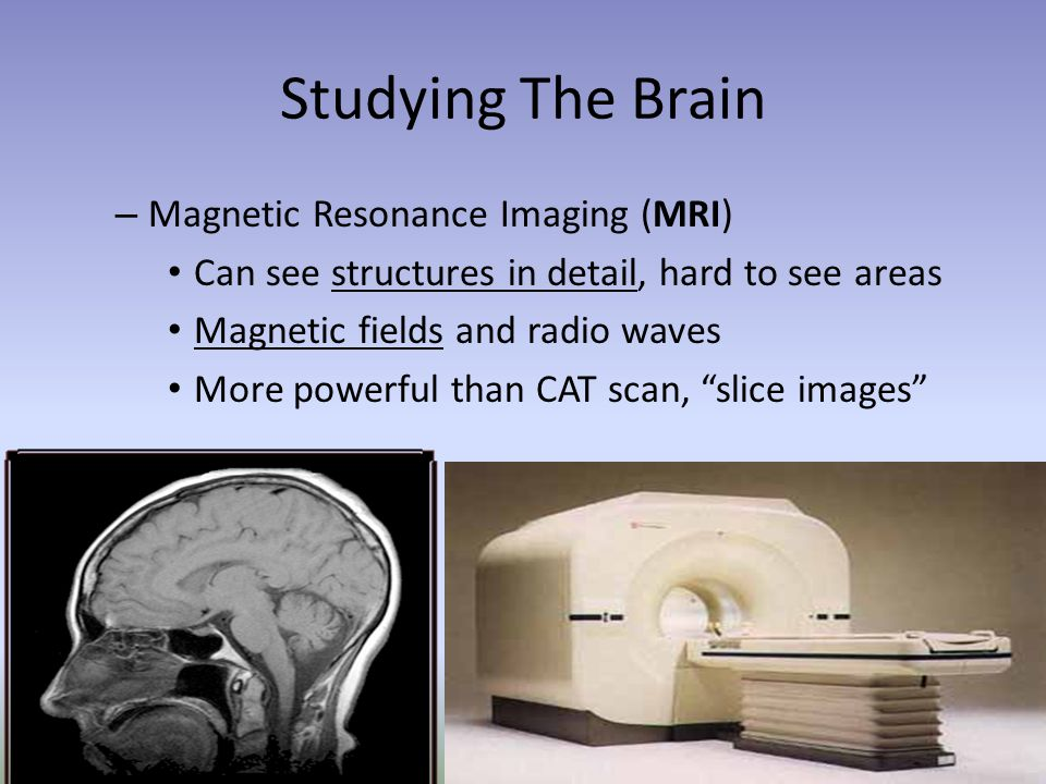 Studying The Brain – Magnetic Resonance Imaging (MRI) Can see structures in detail, hard to see areas Magnetic fields and radio waves More powerful th