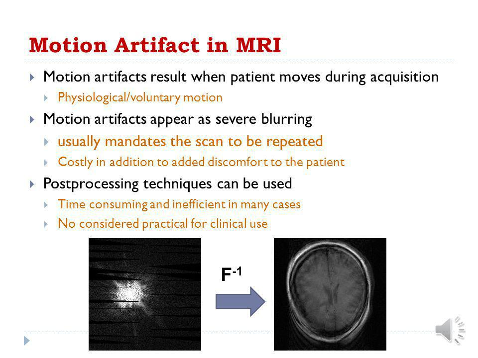 MRI Data Acquisition  MR image is acquired in the k-space  Measured signal represent samples of k-space  Reconstruction is an inverse Fourier trans
