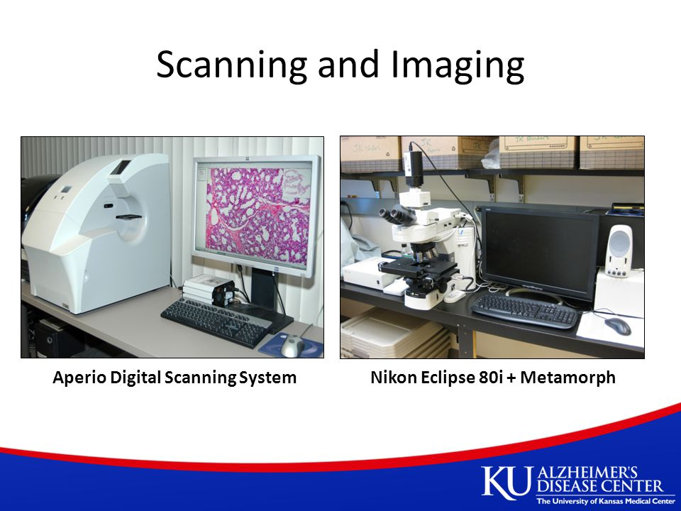 Scanning and Imaging Aperio Digital Scanning SystemNikon Eclipse 80i + Metamorph