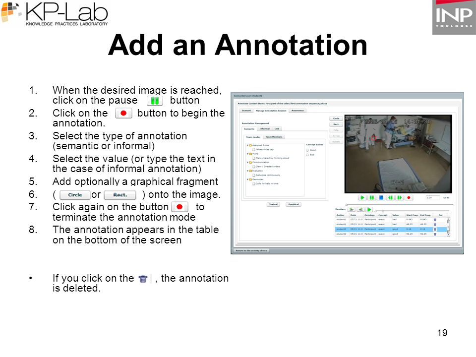 19 1.When the desired image is reached, click on the pause button 2.Click on the button to begin the annotation. 3.Select the type of annotation (sema