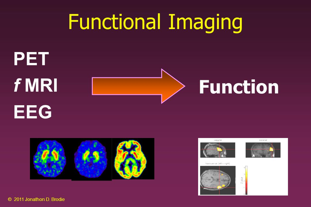 Functional Imaging PET f MRI EEG Function © 2011 Jonathon D. Brodie