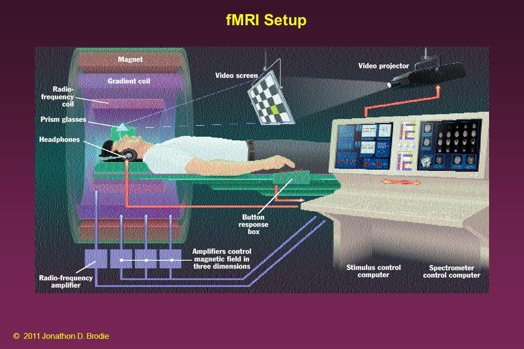 fMRI Setup © 2011 Jonathon D. Brodie