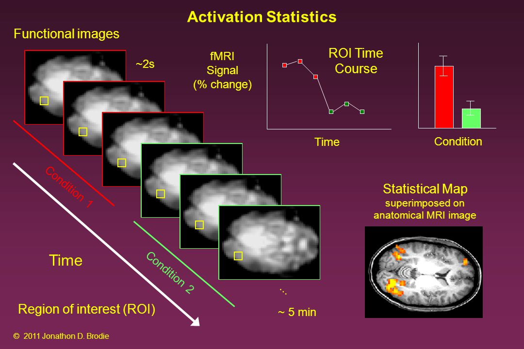 Statistical Map superimposed on anatomical MRI image ~2s Functional images Time Condition 1 Condition 2...