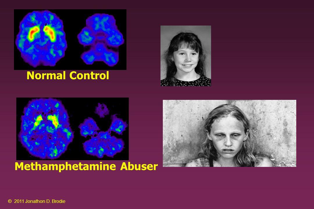 PET Imaging of Amyloid Deposits in Alzheimer's Disease vs Normal Controls Source: Klunk, et al.