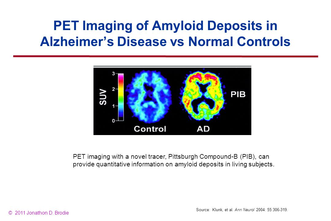 PET Imaging of Amyloid Deposits in Alzheimer's Disease vs Normal Controls Source: Klunk, et al.