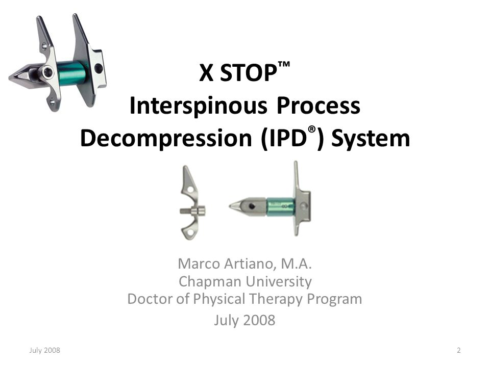 July 200823 X STOP ™ - The Surgery Creating the pilot hole After incision of the lumbar fascia on either side of the spinal processes and supraspinous ligament, the dissection of the paraspinal muscle is performed, separating the bony spinal processes and lamina.