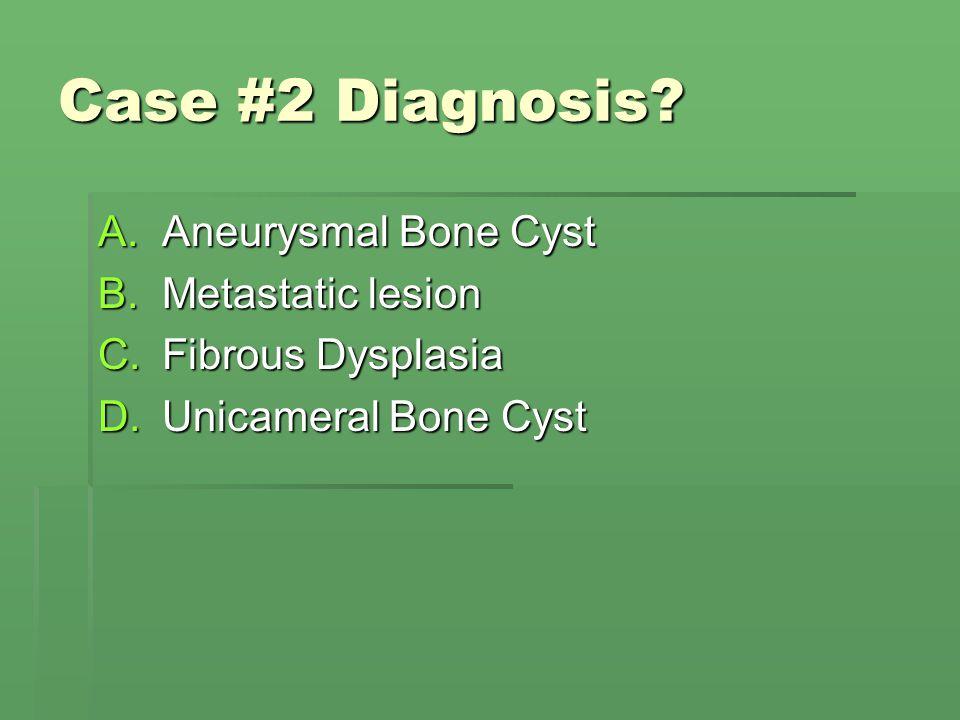 Case #2 Diagnosis? A.Aneurysmal Bone Cyst B.Metastatic lesion C.Fibrous Dysplasia D.Unicameral Bone Cyst