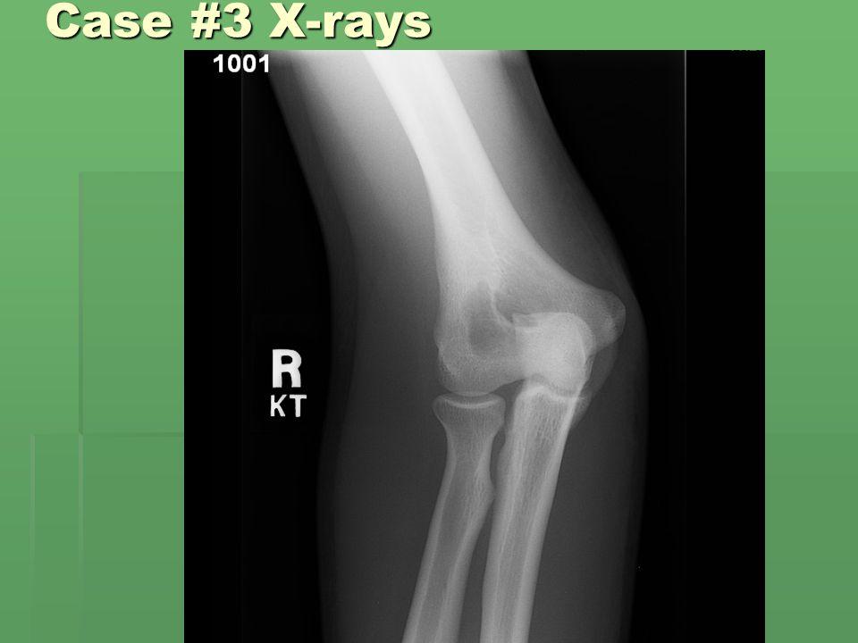 Case #3 X-rays