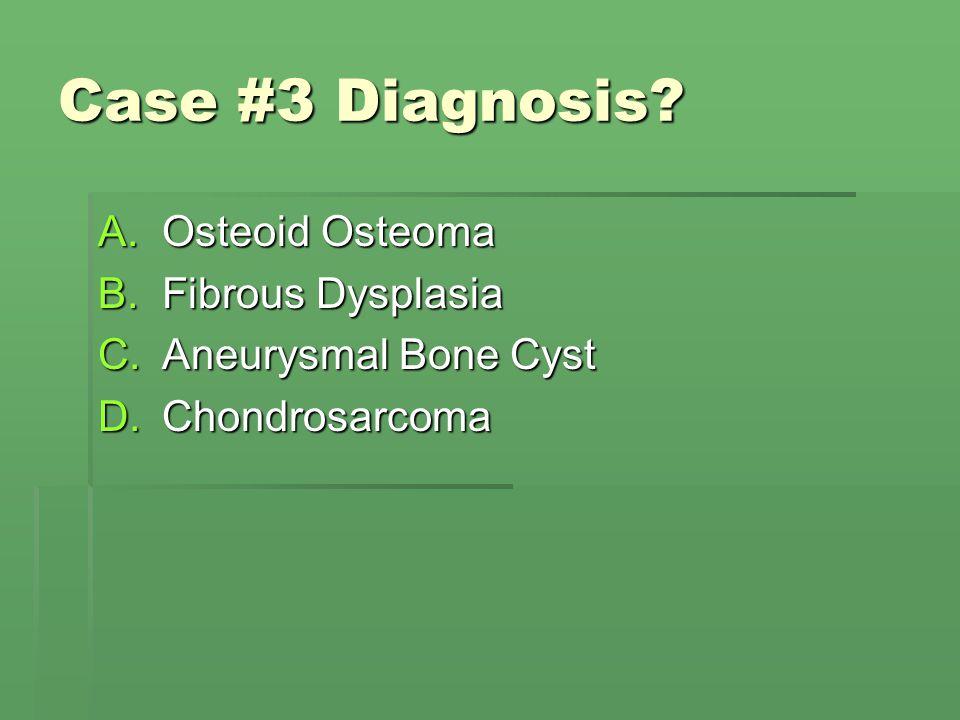 Case #3 Diagnosis? A.Osteoid Osteoma B.Fibrous Dysplasia C.Aneurysmal Bone Cyst D.Chondrosarcoma