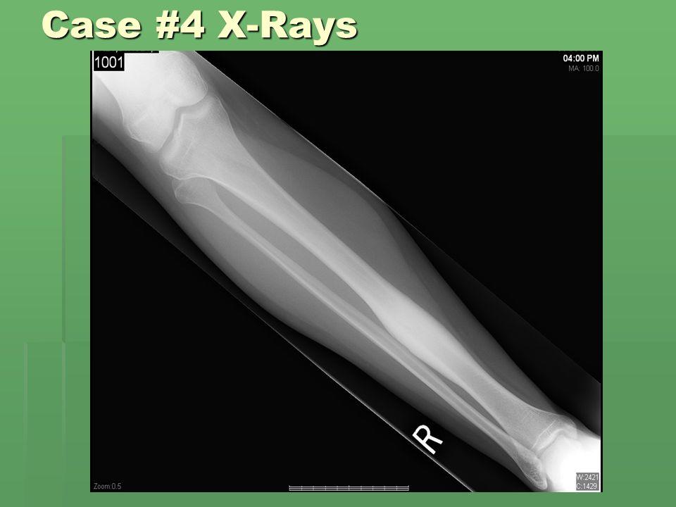 Case #4 X-Rays