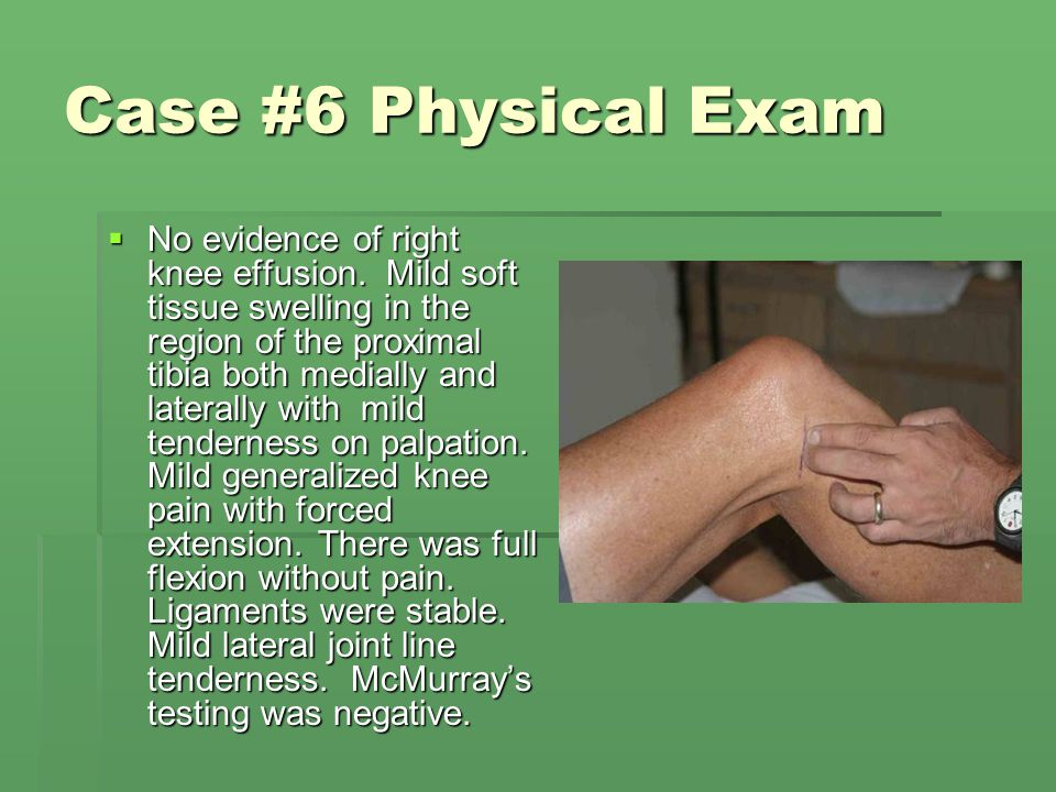 Case #6 Physical Exam  No evidence of right knee effusion. Mild soft tissue swelling in the region of the proximal tibia both medially and laterally